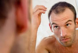 Hair loss in middle life